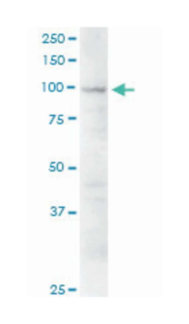 eukaryotic translation initiation factor 3, subunit C, Mouse, Polyclonal