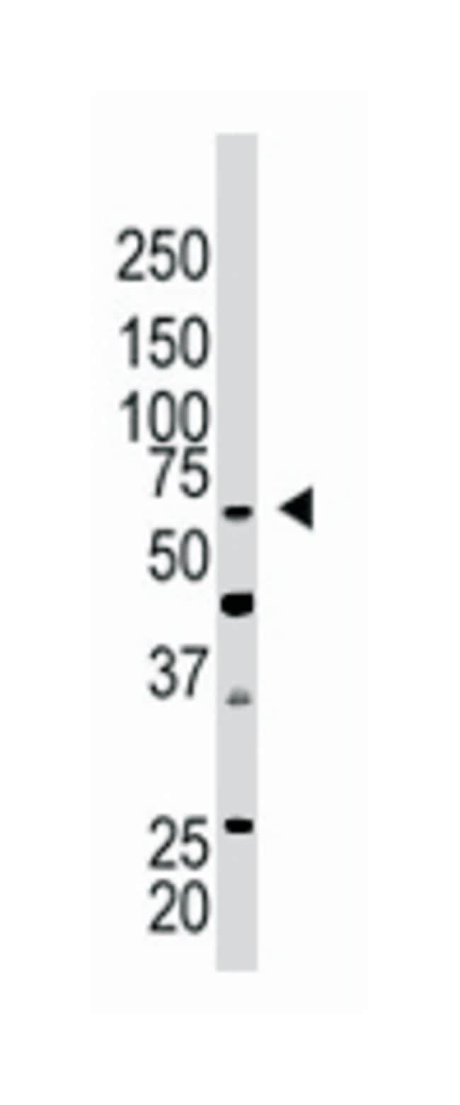 CBX4 Rabbit anti-Human, Mouse, Polyclonal Antibody, Abnova 400µL;