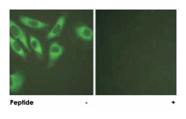 RPS6 Rabbit anti-Human, Mouse, Rat, Polyclonal Antibody, Abnova 100µg;