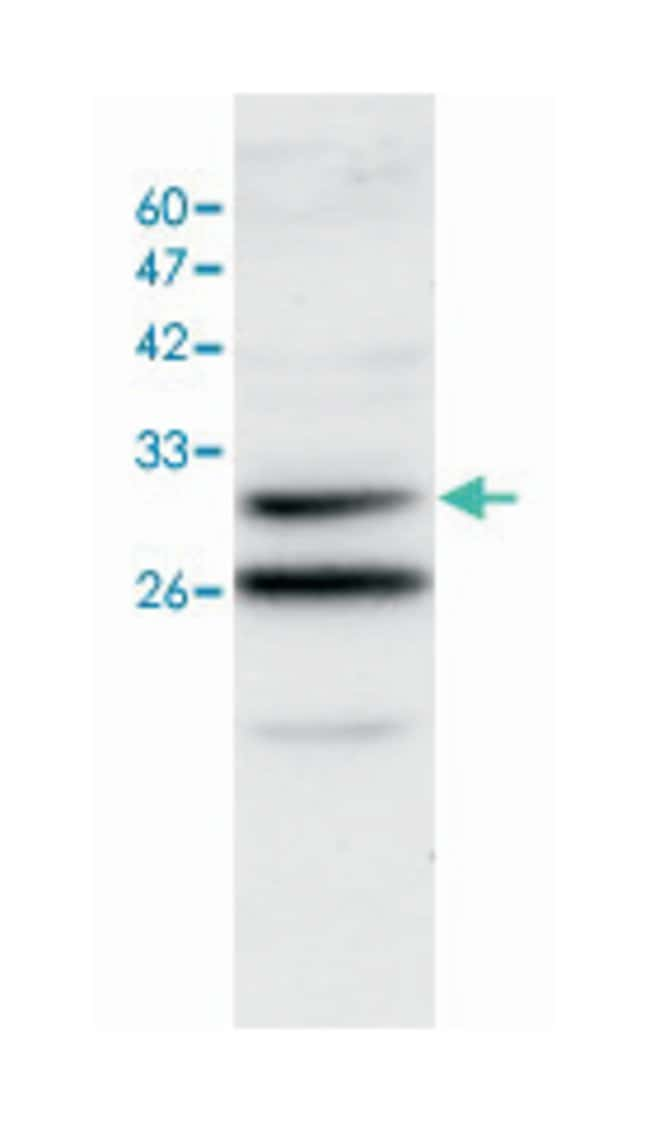 ANXA3, Rabbit, Polyclonal Antibody, Abnova 100µL; Unlabeled:Life Sciences