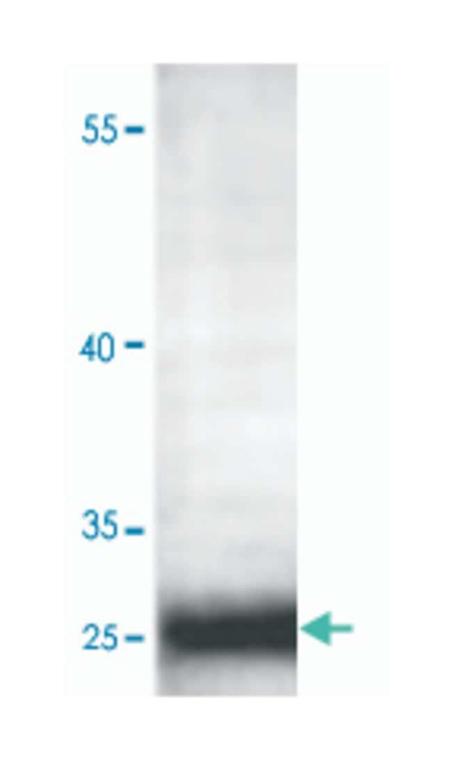 ADIPOQ Rabbit anti-Human, Polyclonal Antibody, Abnova 100µg; Unlabeled:Life