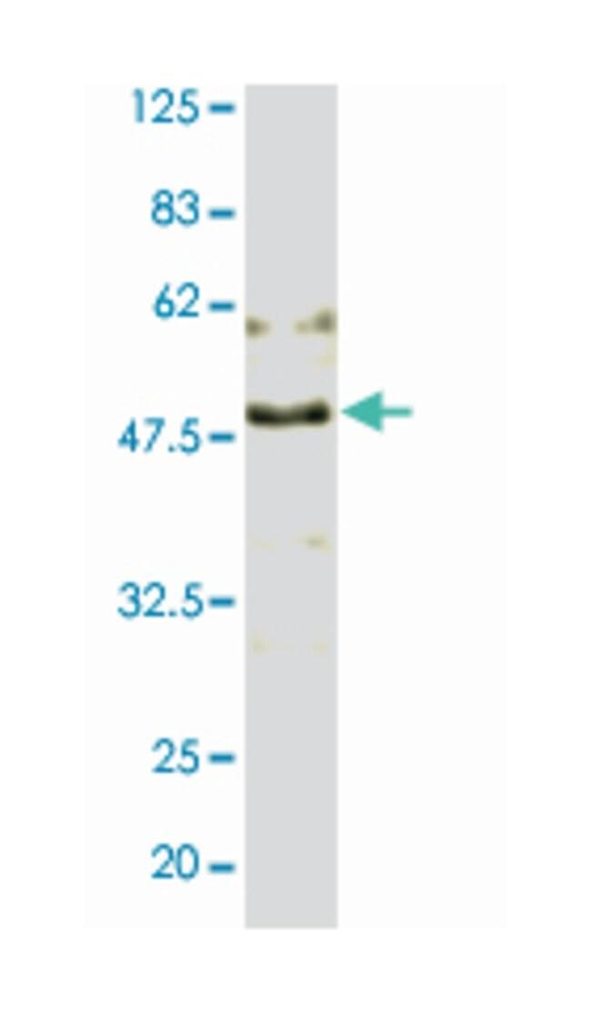 TOA1 (Saccharomyces cerevisiae TOA1), Rabbit, Polyclonal Antibody, Abnova
