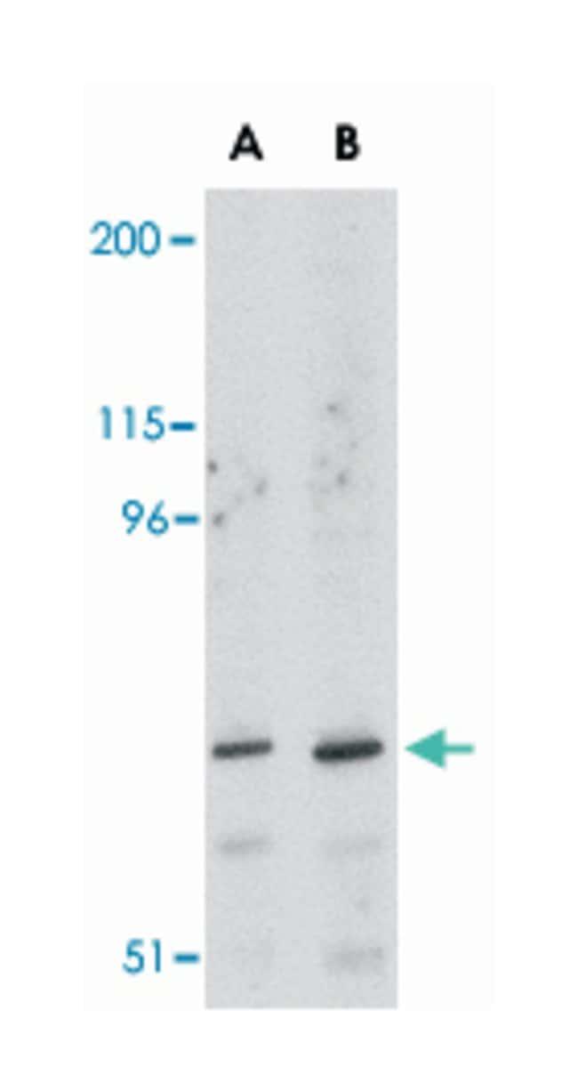 ASAH2 Rabbit anti-Human, Mouse, Rat, Polyclonal Antibody, Abnova 100µg;