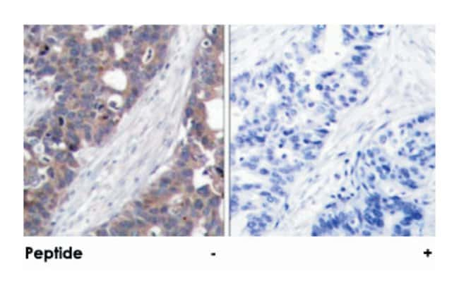 RPS6KB1 Rabbit anti-Human, Mouse, Rat, Polyclonal Antibody, Abnova 100µg;
