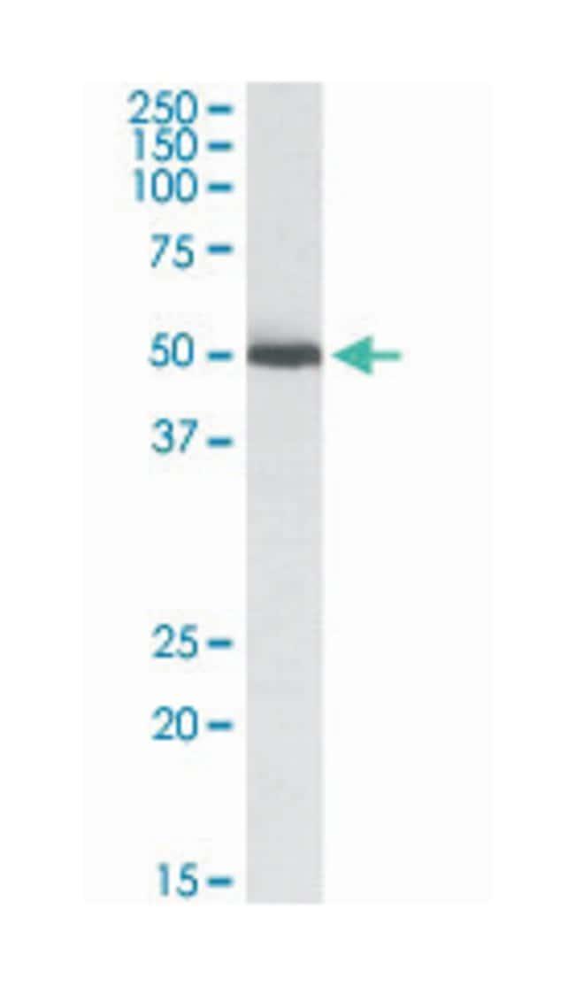 ALDH2, Goat, Polyclonal Antibody, Abnova 100µg; Unlabeled:Life Sciences