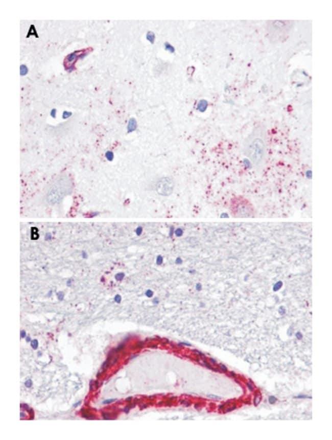 APLNR Rabbit anti-Human, Polyclonal Antibody, Abnova 50µg; Unlabeled:Life