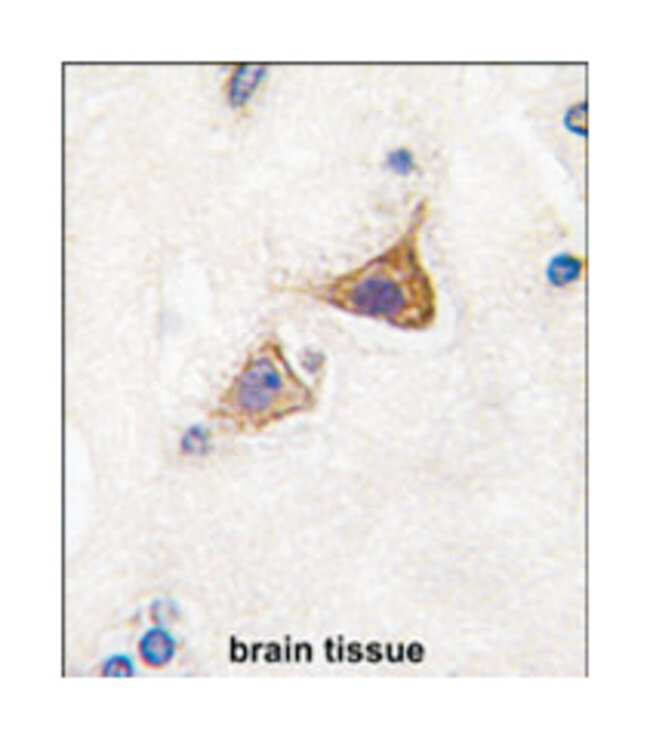 JPH3 Rabbit anti-Mouse, Polyclonal Antibody, Abnova 400µL; Unlabeled:Life
