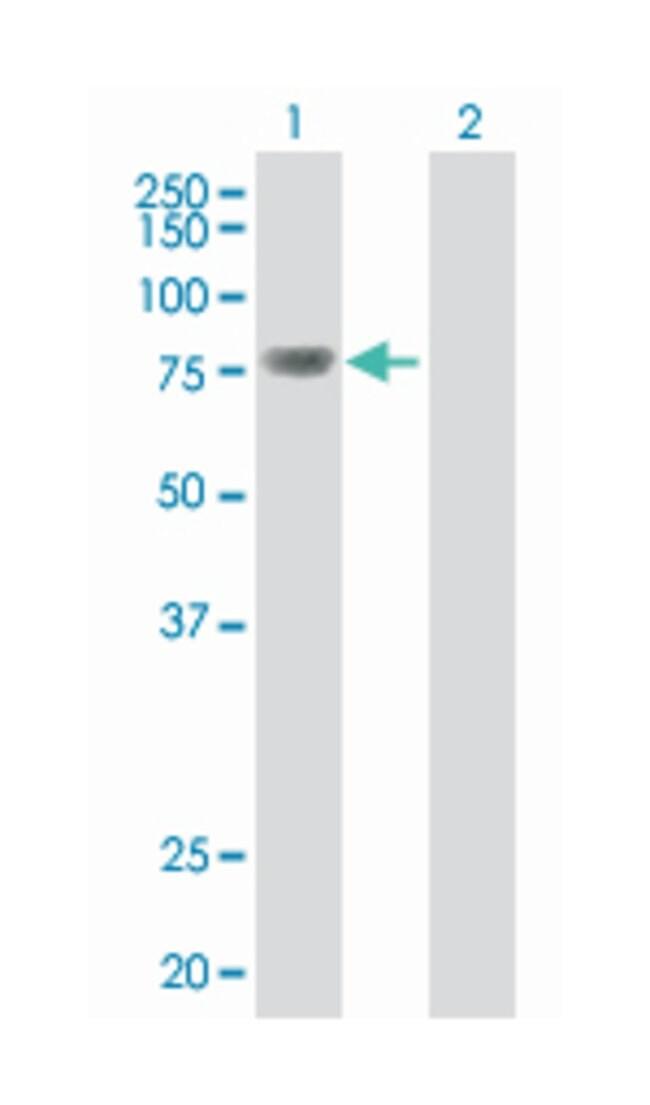 topoisomerase (DNA) III beta, Mouse, Polyclonal Antibody, Abnova 50µL;