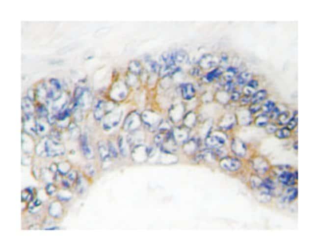TNFRSF6B Rabbit anti-Human, Polyclonal Antibody, Abnova 100µL; Unlabeled:Life