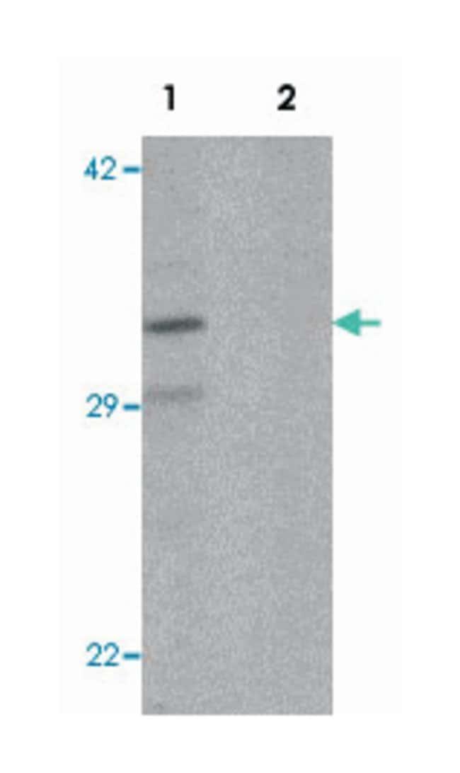 CLEC2A, Rabbit, Polyclonal Antibody, Abnova 100µg; Unlabeled:Life