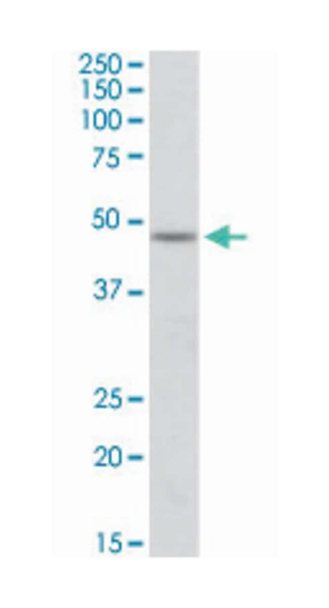 POU3F3, Goat, Polyclonal Antibody, Abnova 100µg; Unlabeled:Life Sciences