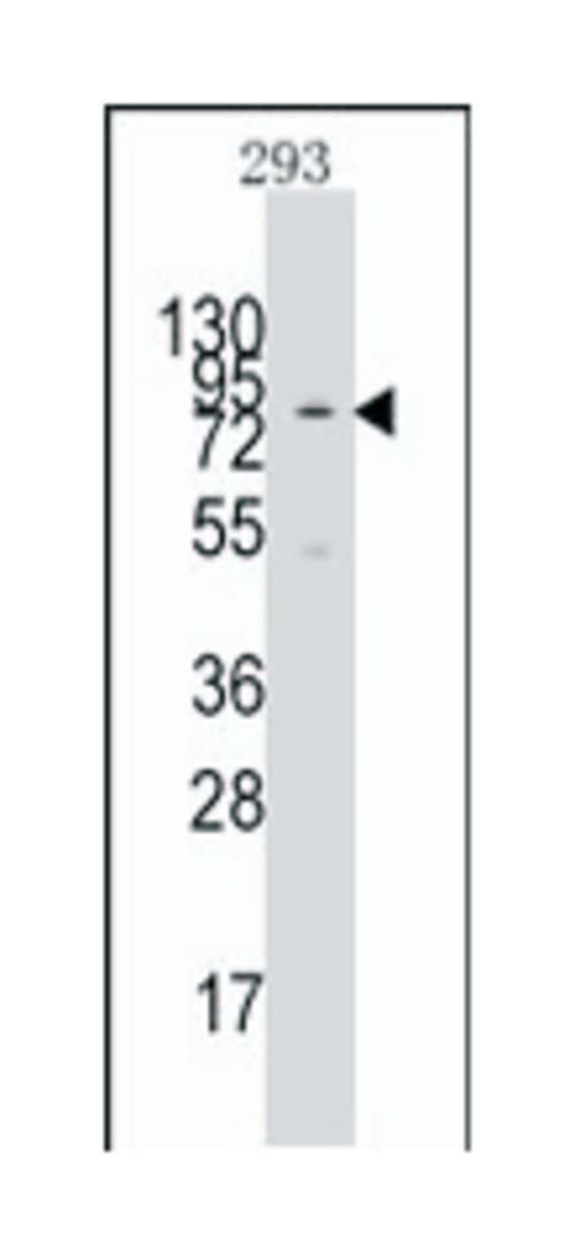 KAT2A (GCN5L2), Rabbit, Polyclonal Antibody, Abnova 400µL; Unlabeled:Life