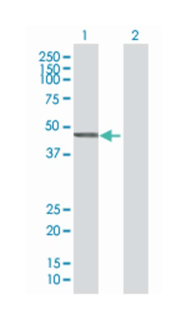 cytohesin 2, Mouse, Polyclonal Antibody, Abnova 50µL; Unlabeled