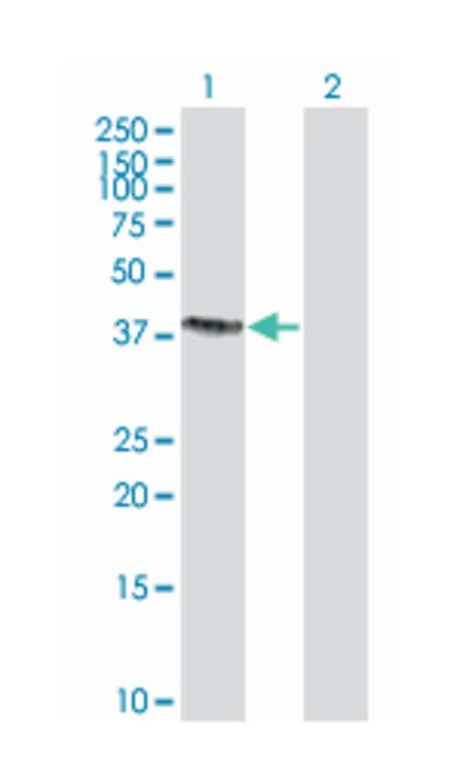 sorting nexin 15 (B02), Mouse anti-Human, Polyclonal Antibody, Abnova 50µL;
