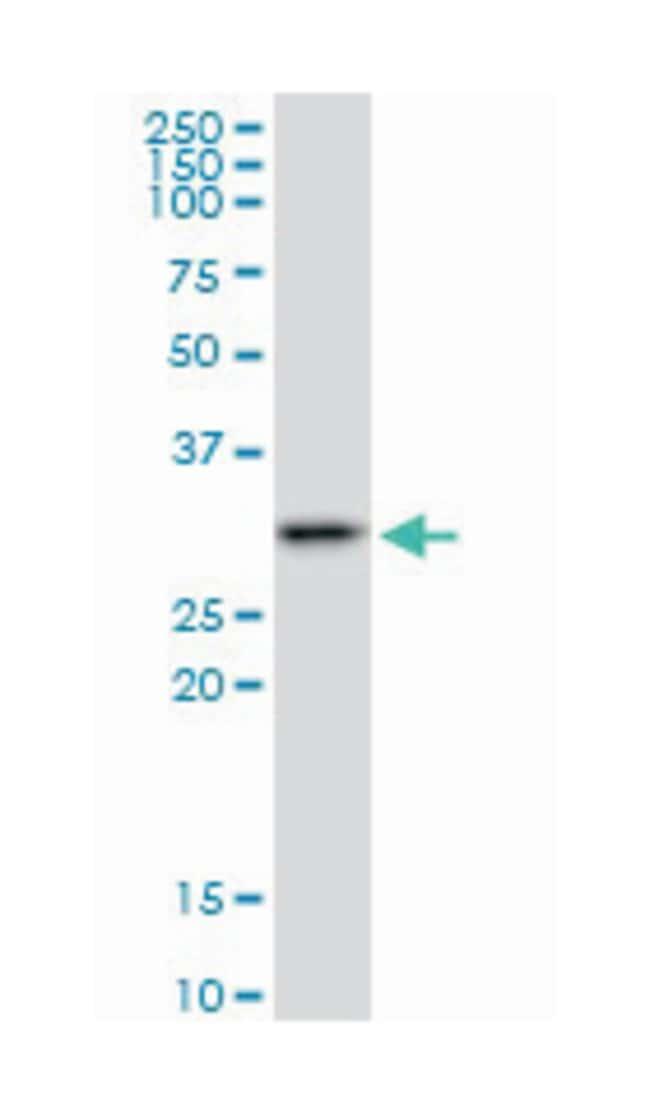 survival motor neuron domain containing 1, Mouse, Polyclonal Antibody,