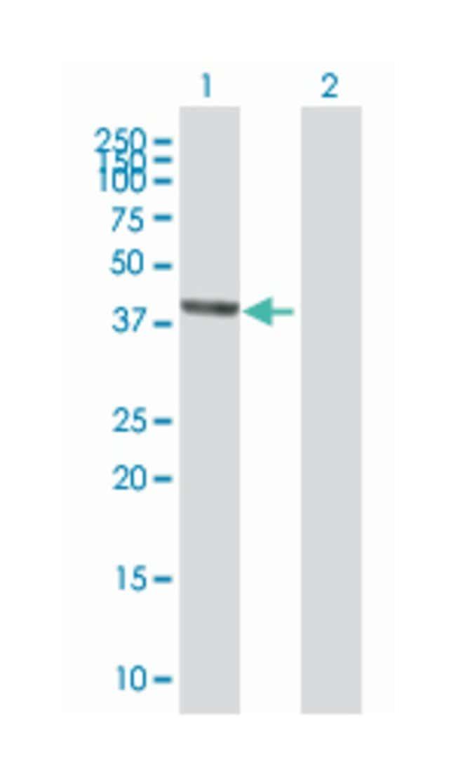 SEC14-like 2 (S. cerevisiae), Mouse, Polyclonal Antibody, Abnova 50µL;