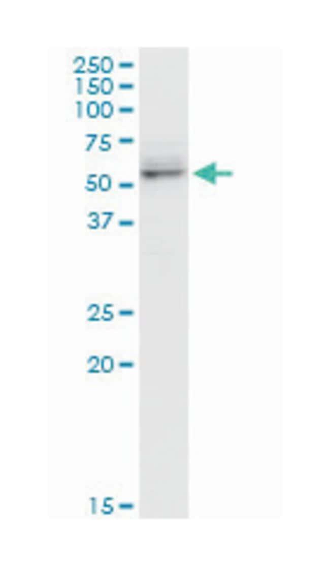 cell adhesion molecule 1, Mouse, Polyclonal Antibody, Abnova 50µL;