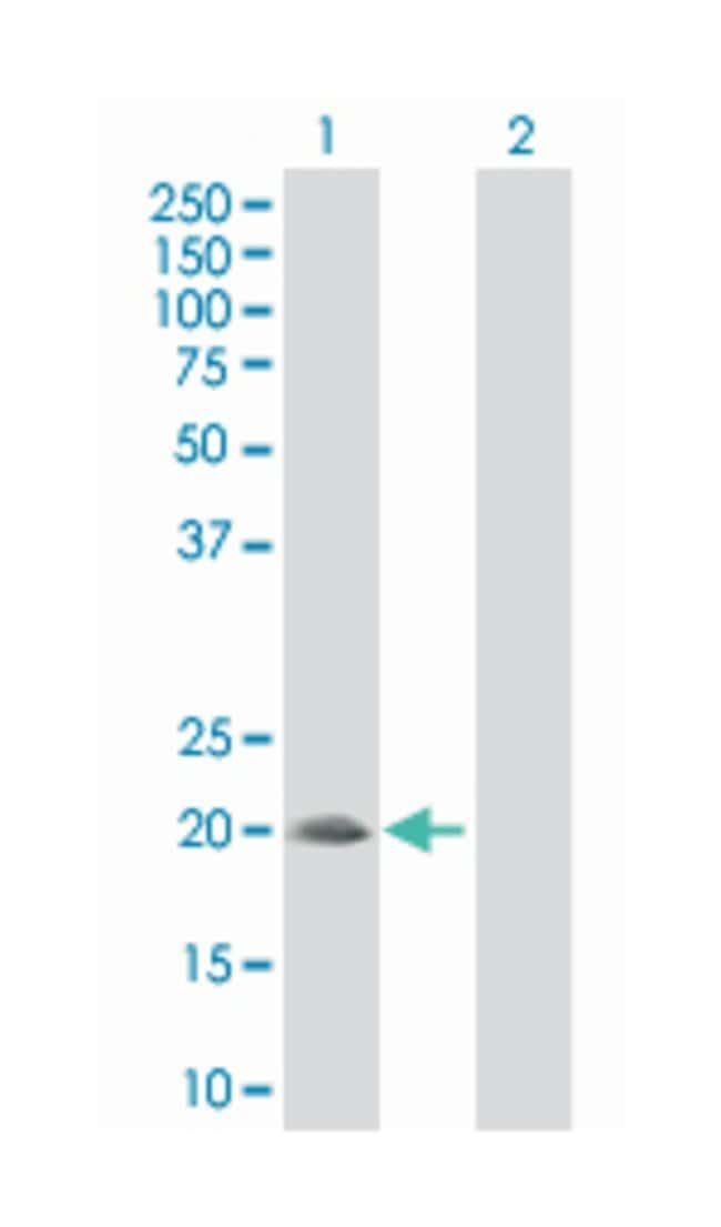 sorting nexin 24, Mouse, Polyclonal Antibody, Abnova 50µL; Unlabeled