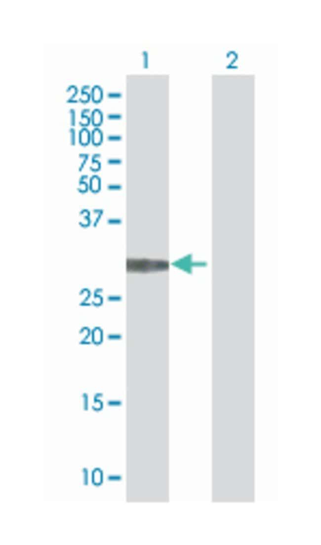 mediator complex subunit 6 (B01), Mouse anti-Human, Polyclonal Antibody,