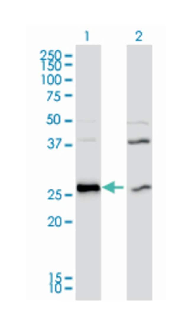 DnaJ (Hsp40) homolog, subfamily B, member 6 (A01), Mouse anti-Human, Rat,