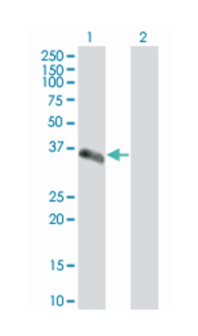 secretory carrier membrane protein 2, Mouse, Polyclonal Antibody, Abnova