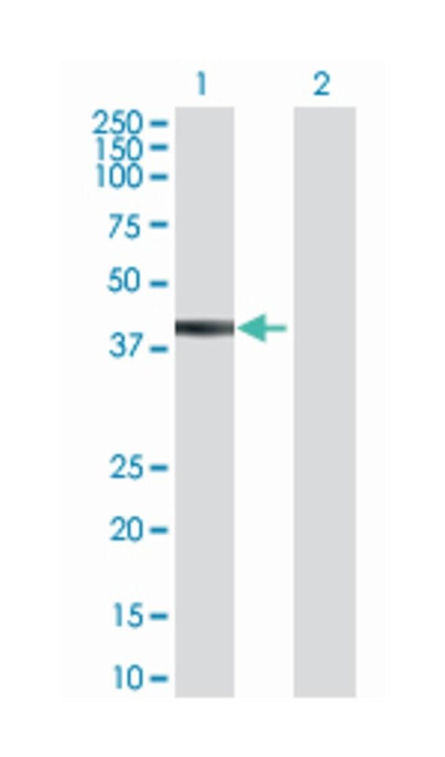 tripartite motif-containing 10, Mouse, Polyclonal Antibody, Abnova 50µL;