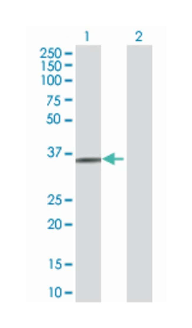 3'(2'), 5'-bisphosphate nucleotidase 1, Mouse, Polyclonal Antibody, Abnova