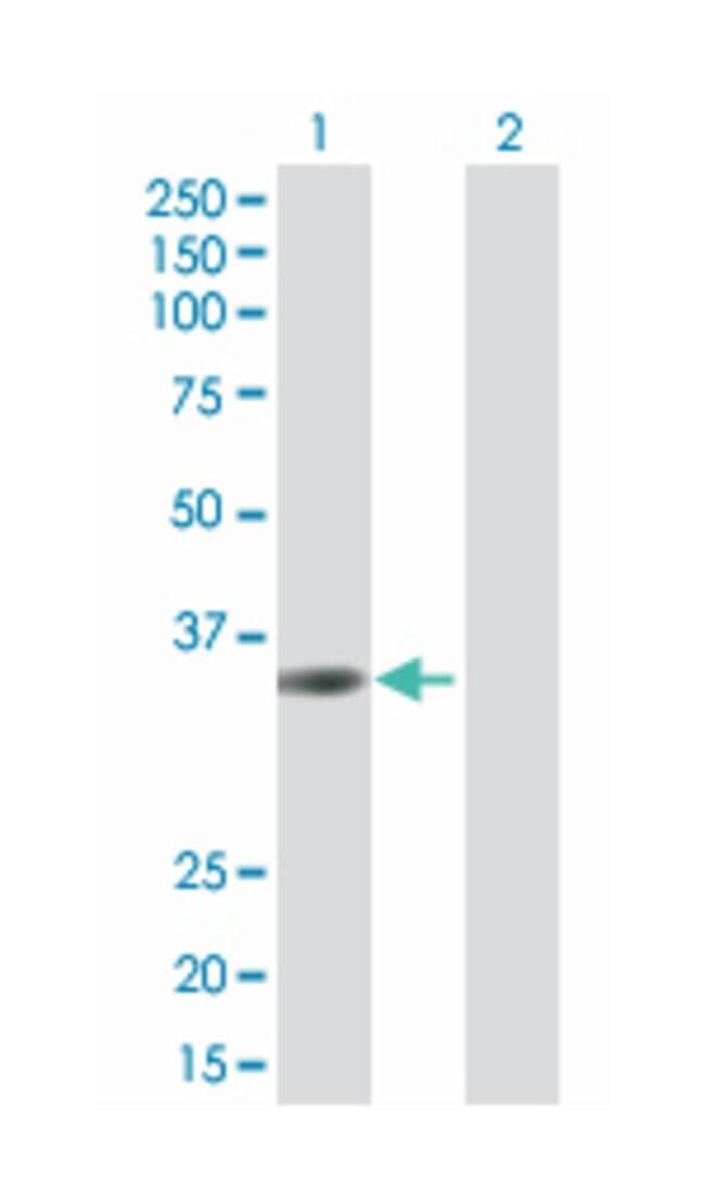 transmembrane protein 115, Mouse, Polyclonal Antibody, Abnova 50µL;
