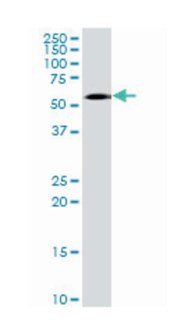 arginyltransferase 1 (B01), Mouse anti-Human, Polyclonal Antibody, Abnova