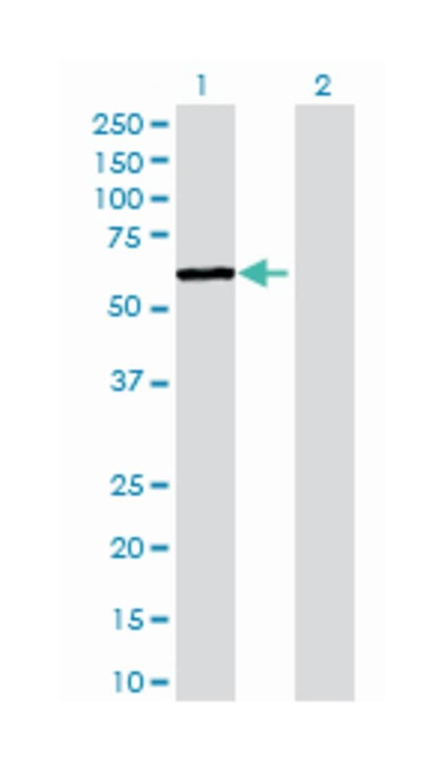 recombination signal binding protein for immunoglobulin kappa J region-like,
