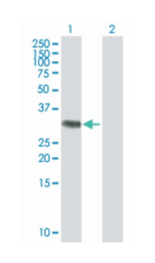 RING1 and YY1 binding protein (B01), Mouse anti-Human, Polyclonal Antibody,