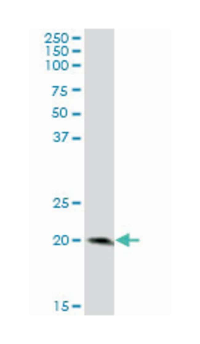 lymphocyte antigen 96, Mouse, Polyclonal Antibody, Abnova 50µL; Unlabeled