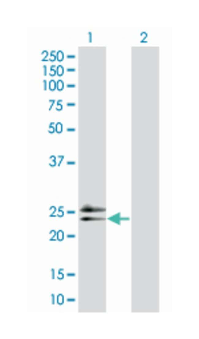 RAD54 homolog B (S. cerevisiae), Mouse, Polyclonal Antibody, Abnova 50µL;