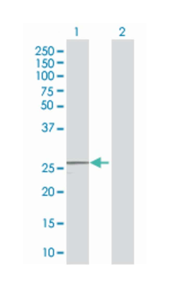 RAB26, member RAS oncogene family (B02), Mouse anti-Human, Polyclonal Antibody,
