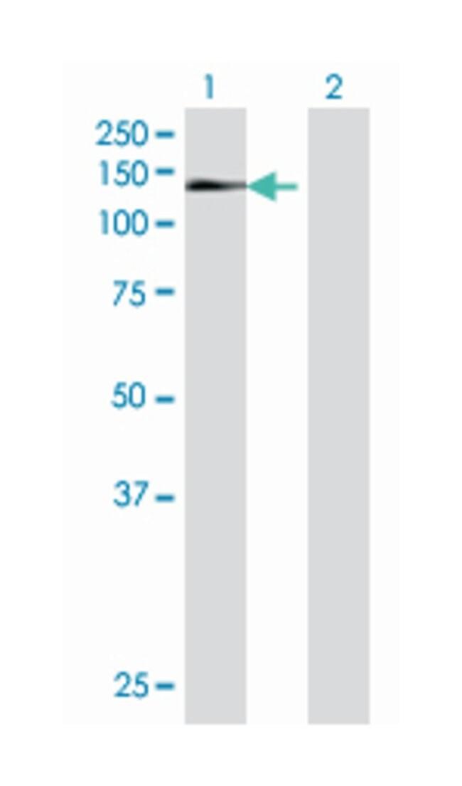 zinc finger protein 473, Mouse, Polyclonal Antibody, Abnova 50µL;