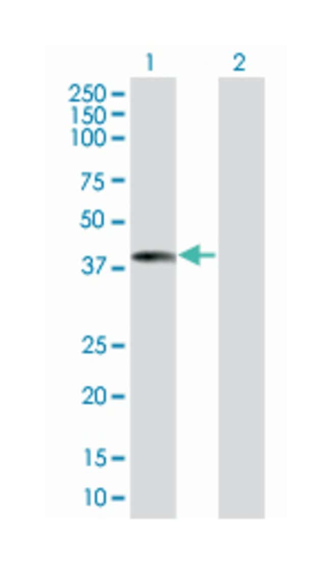 F-box protein 2, Mouse, Polyclonal Antibody, Abnova 50µL; Unlabeled