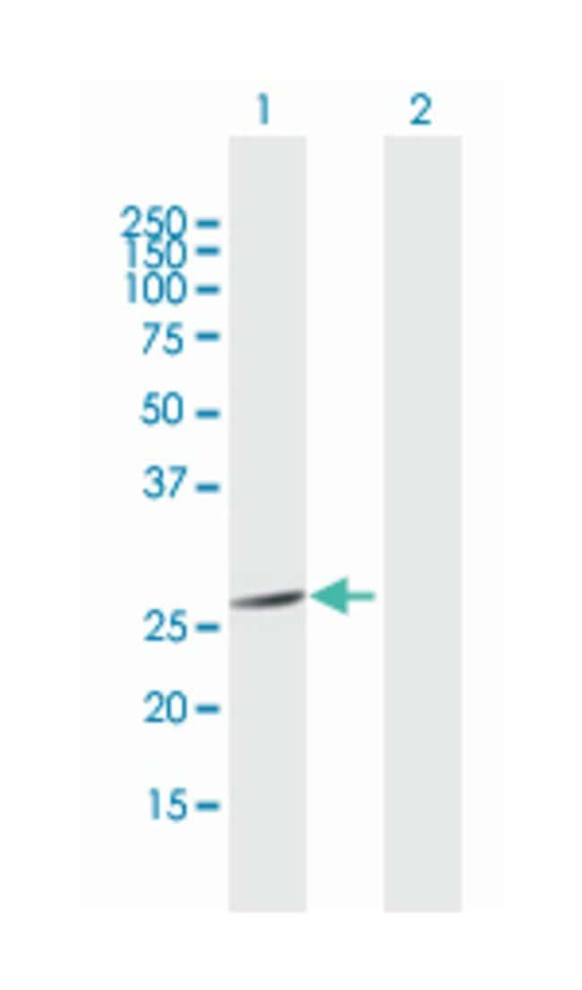 fibroblast growth factor 21, Mouse, Polyclonal Antibody, Abnova 50µL;