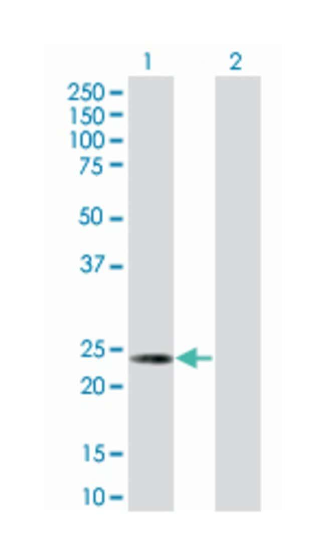 heat shock 22kDa protein 8, Mouse, Polyclonal Antibody, Abnova 50µL;
