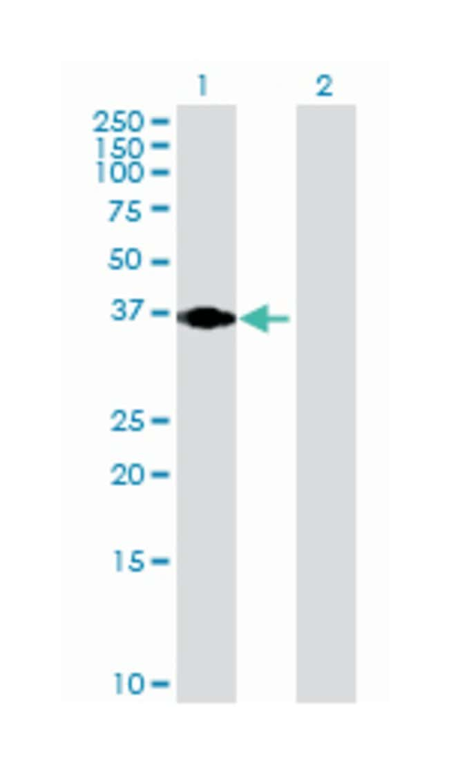 par-6 partitioning defective 6 homolog alpha (C. elegans) (B01), Mouse