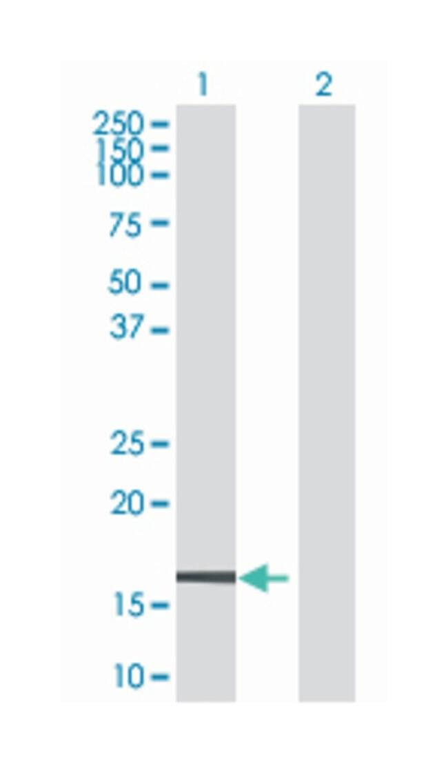 zinc finger protein 44, Mouse, Polyclonal Antibody, Abnova 50µL; Unlabeled