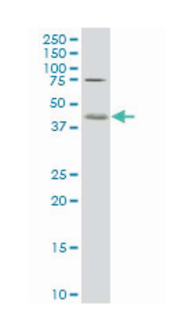 core 1 synthase, glycoprotein-N-acetylgalactosamine 3-beta-galactosyltransferase,
