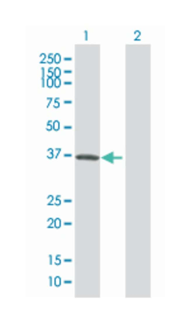 ankyrin repeat, family A (RFXANK-like), 2, Mouse, Polyclonal Antibody,