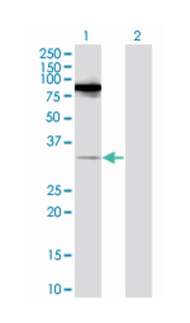 RAS-like, family 11, member B, Mouse, Polyclonal Antibody, Abnova 50µL;