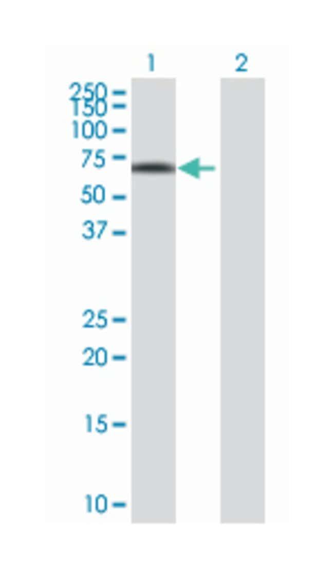iroquois homeobox 3, Mouse, Polyclonal Antibody, Abnova 50µL; Unlabeled