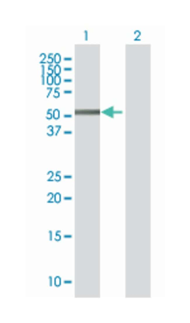 zinc finger protein 436, Mouse, Polyclonal Antibody, Abnova 50µL;