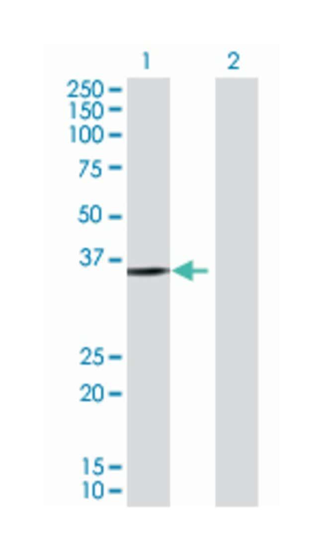 protein kinase-like protein SgK493, Mouse, Polyclonal Antibody, Abnova