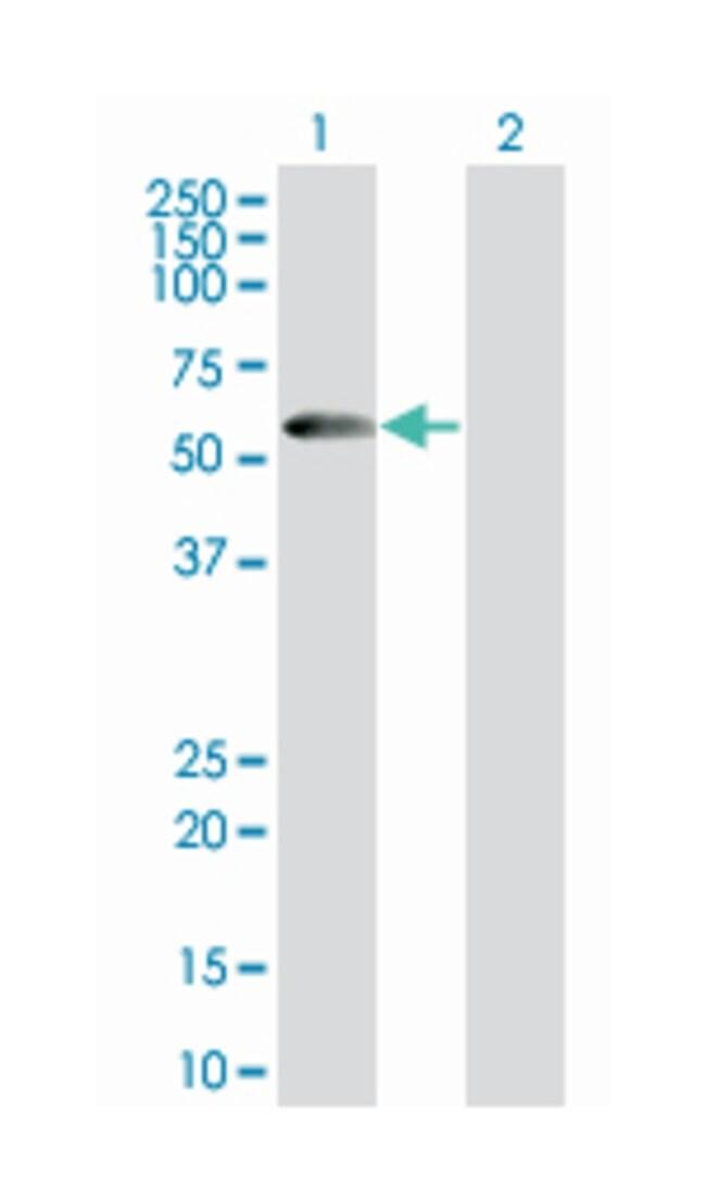 PDZ domain containing 3, Mouse, Polyclonal Antibody, Abnova 50µL;