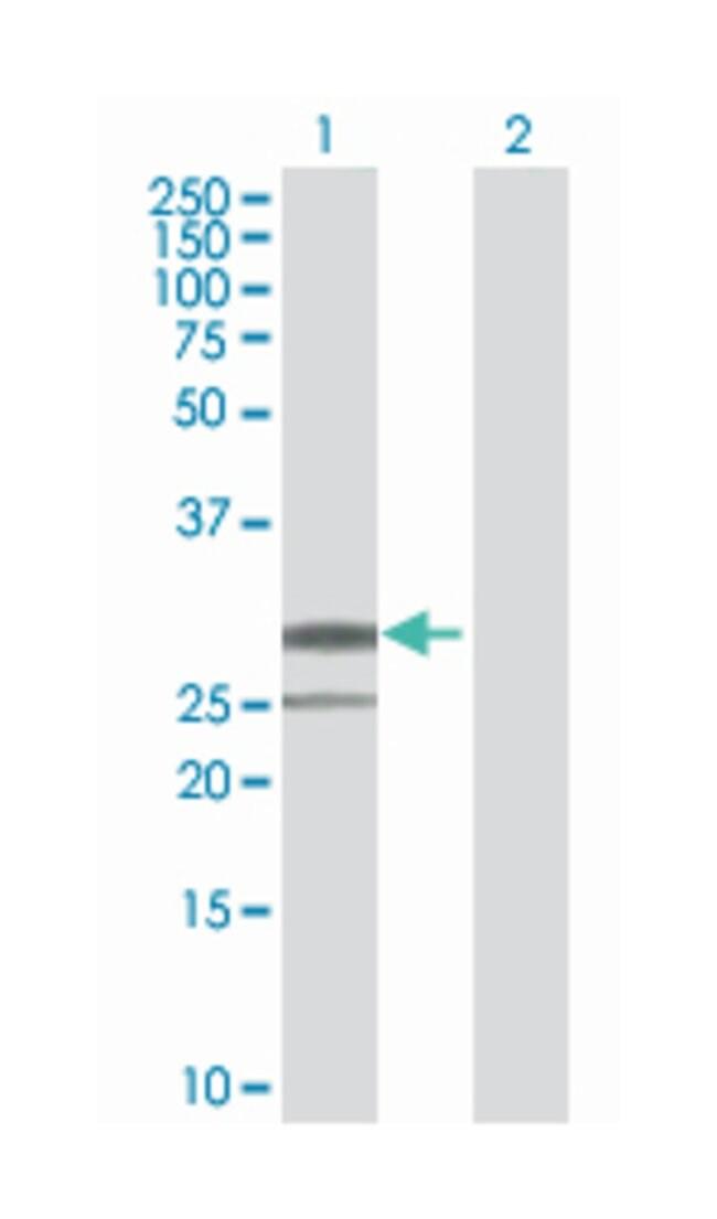 peptidase inhibitor 15, Mouse, Polyclonal Antibody, Abnova 50µL; Unlabeled