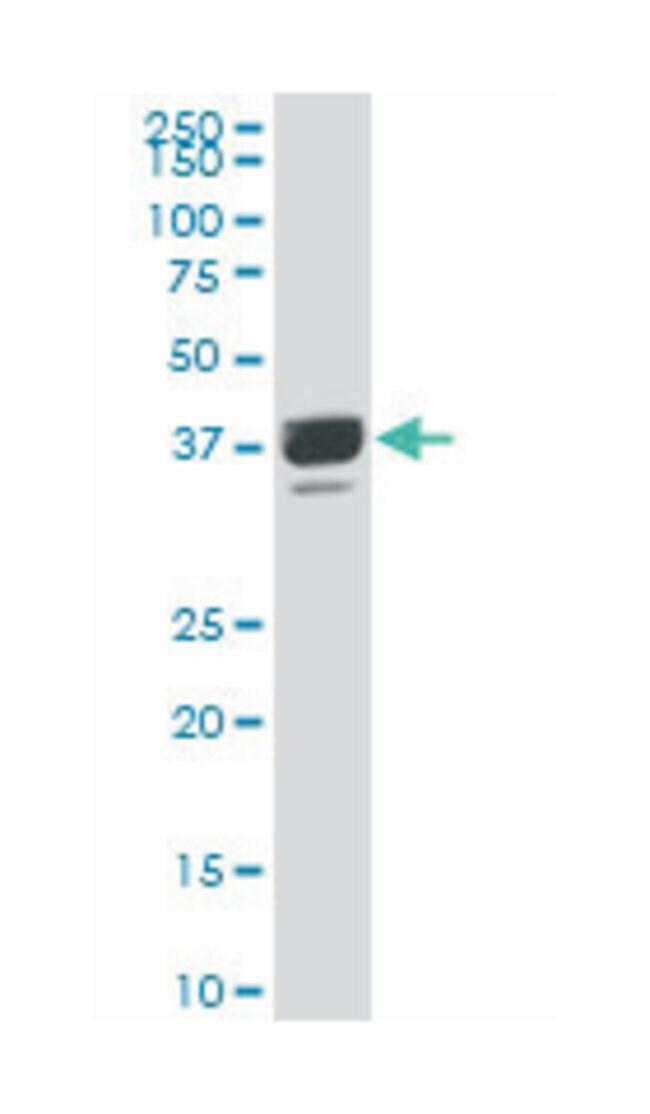 proline rich 16, Mouse, Polyclonal Antibody, Abnova 50µL; Unlabeled