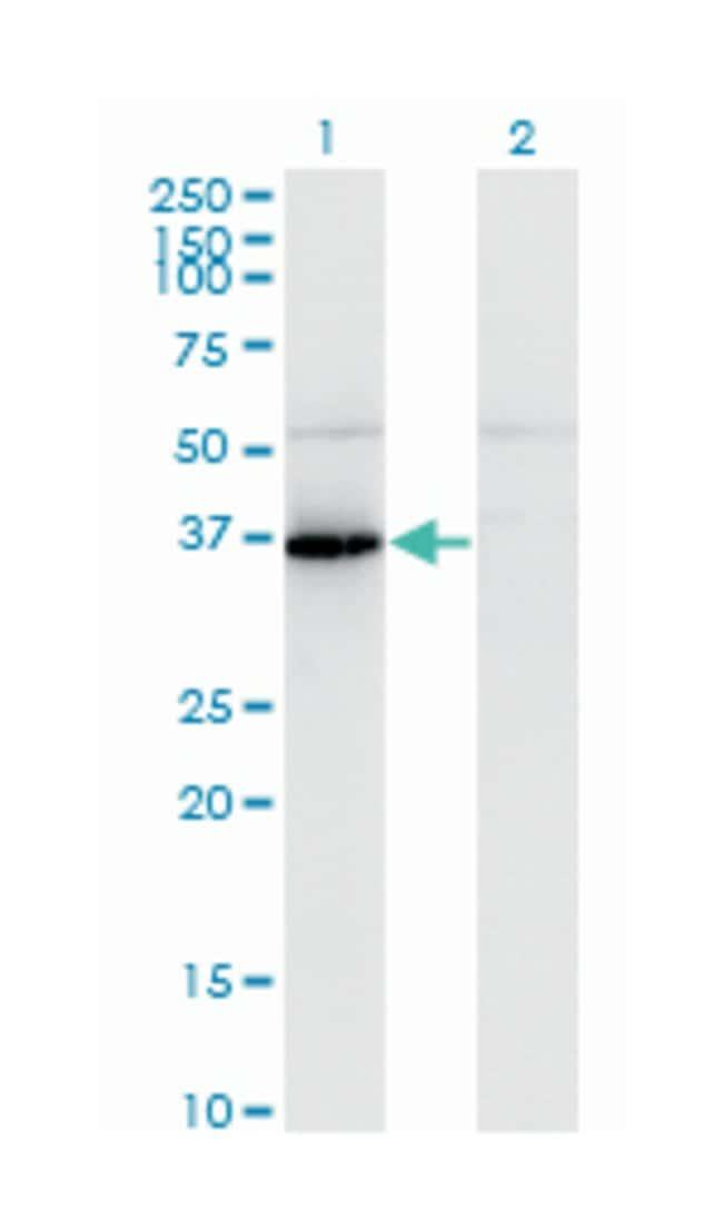 pantothenate kinase 1, Mouse, Polyclonal Antibody, Abnova 50µL; Unlabeled